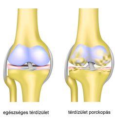 arthrosis tb ízületi tünetek