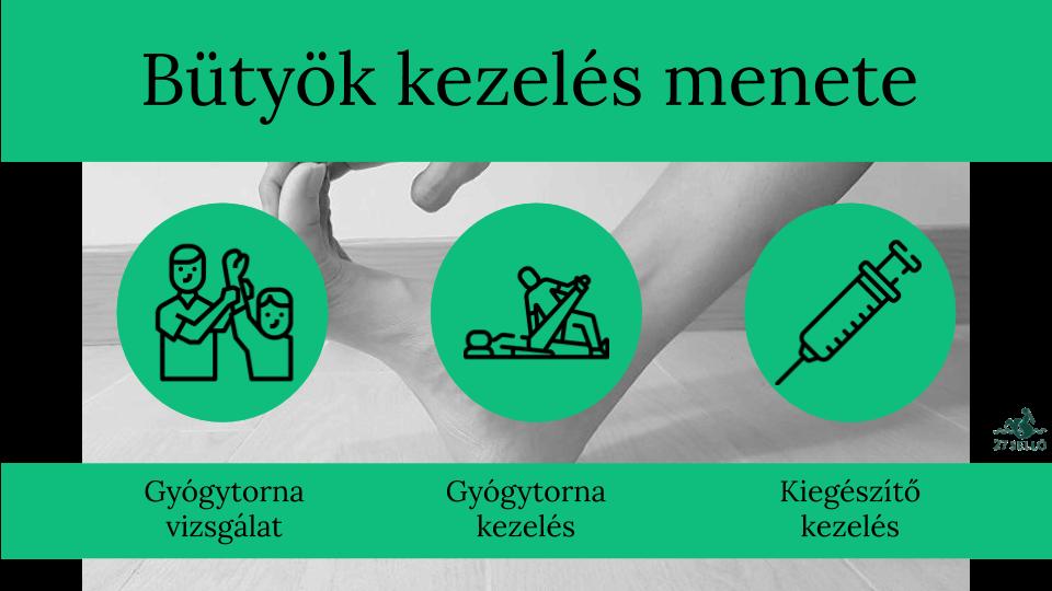 tabletták a deformáló ízületi gyulladás kezelésére izületi gyulladás kezelése homeopátiával