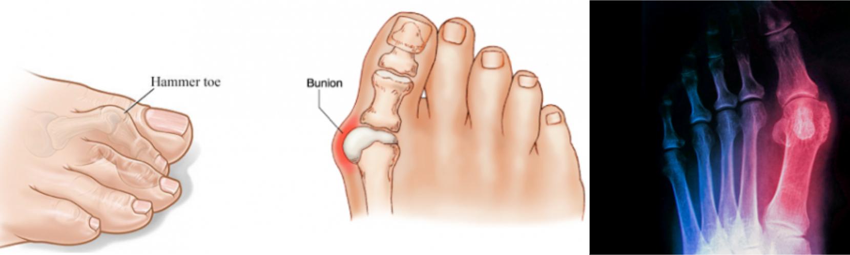 artrosis a láb kezelése)