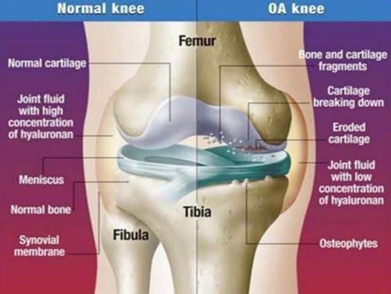 artrózis kezelés díja)