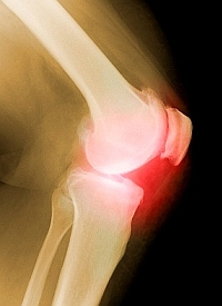 az artrózis enyhíti az ízületi duzzanatot