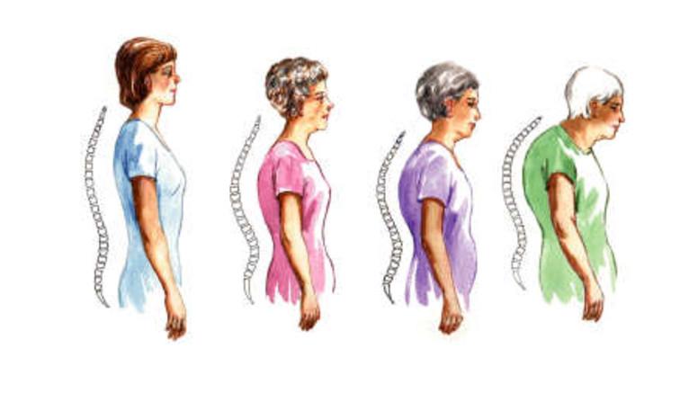 Csípőfájdalom és csontritkulás - Mozgásszervi megbetegedések