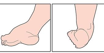 az alsó láb veleszületett hamis ízületének kezelése)