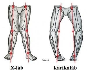 fájdalom az alsó lábban, térd artrózisával peptidek együttes kezelése