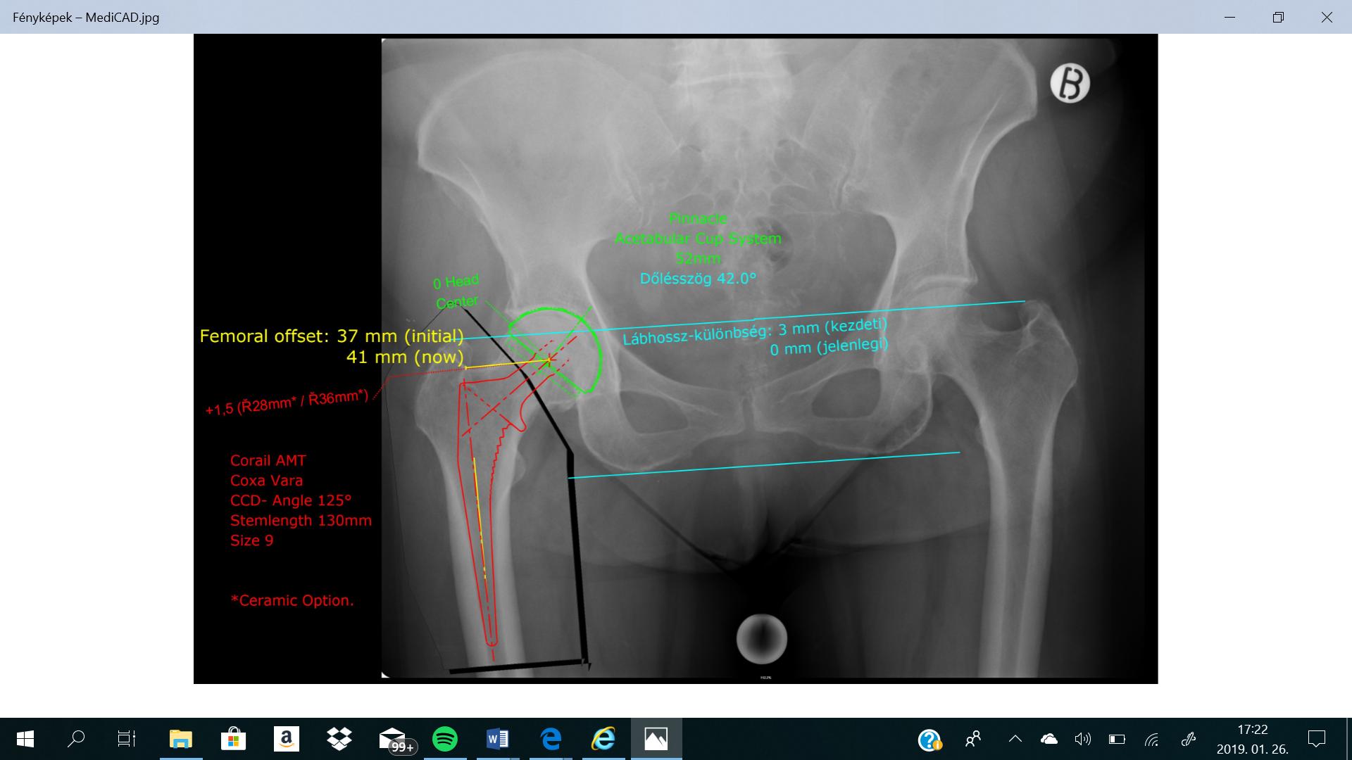 röntgen a csípőízület fájdalmáért)