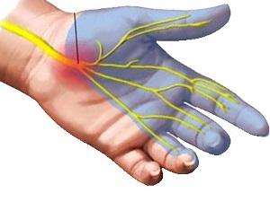 Fájdalomcsökkentő tippek a hüvelykujj ízületi gyulladására