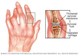 rheumatoid ízületi fájdalom)