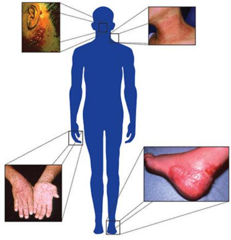 a csípőízületek fájdalmának pszichoszomatikája)