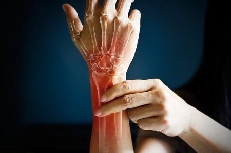 a nagy lábujj rheumatoid arthritis térdödéma fájdalom nélkül