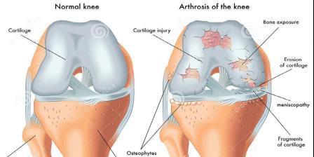 az ízület artrózisának standard kezelése fáj a páros ízületek
