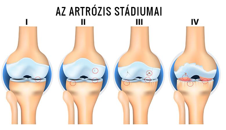 térd artrózis esetén a fájdalom állandó vagy