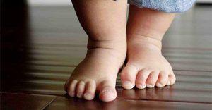 problémák egy csípőízületi gyereknél