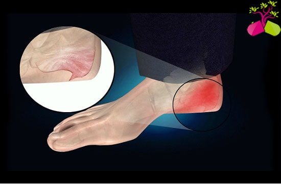 térd kenőcső osteoarthritis ízületi fájdalom és hányinger