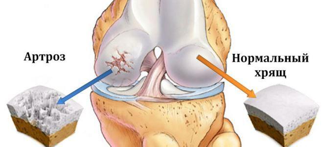 metipred artritisz kezelésére