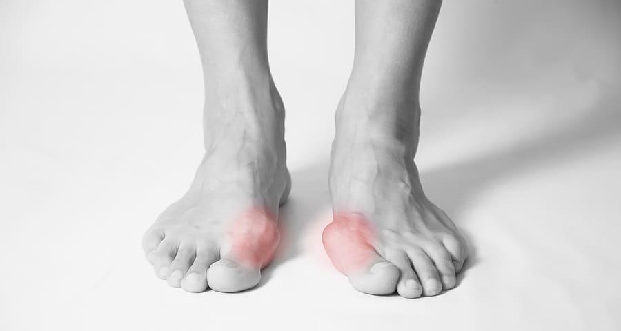 Lábgomba - tünetek, tünetek, kezelés és megelőzés - Masszázs