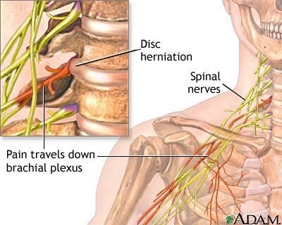 brachialis arthrosis tünetei