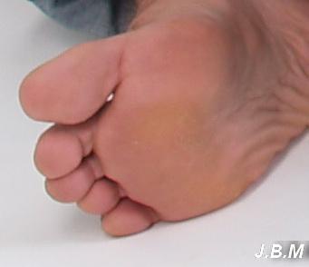 Lapos lábfej diagnózisa