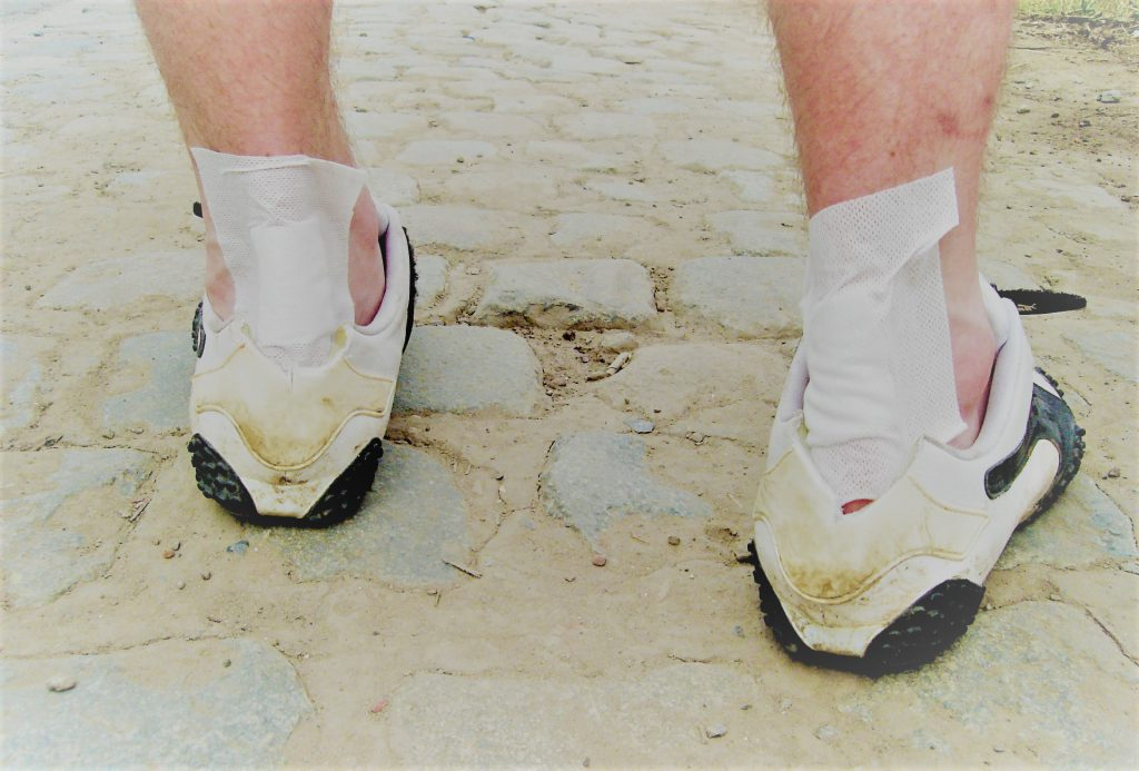 a középső láb ízületei ízületi gyulladása)