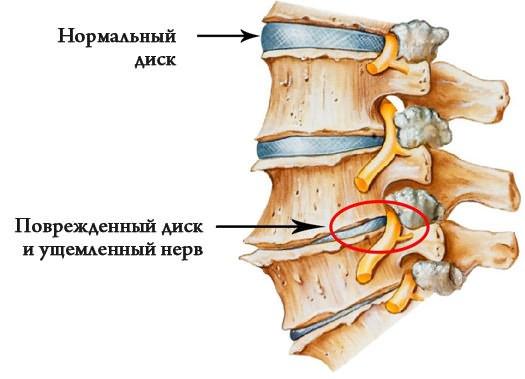 éles fájdalom a bal csípőízületben)