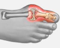 ízületi gyulladás a nagy lábujj tünetei