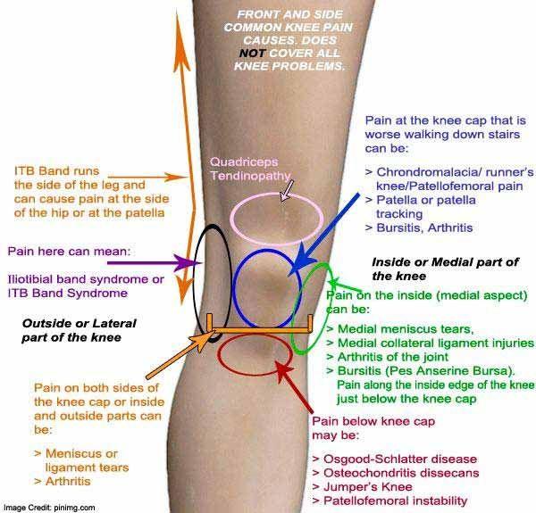 térdízület ragasztásainak és inak kezelése a kürt térdízületének meniszkuszának károsodása
