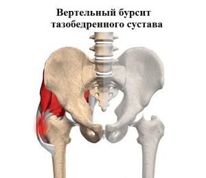 femorális fájdalomkezelés)