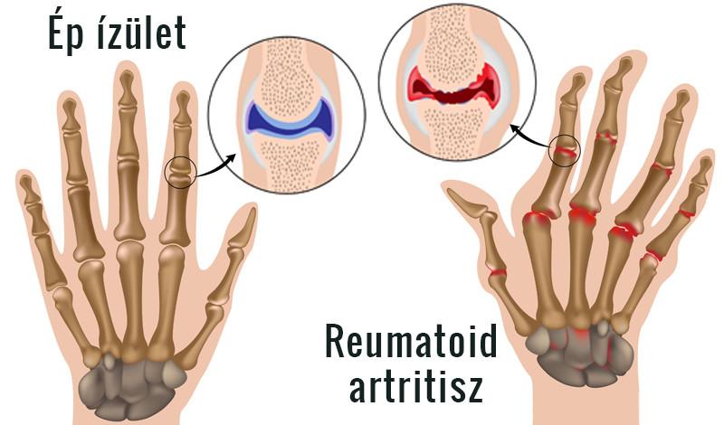 ízületi betegségek a kéz és a kéz