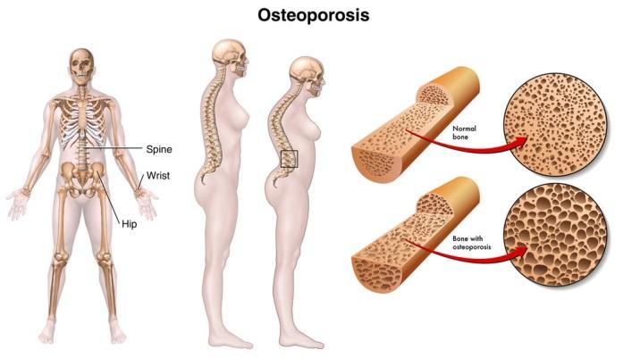 csontritkulás és kezelése