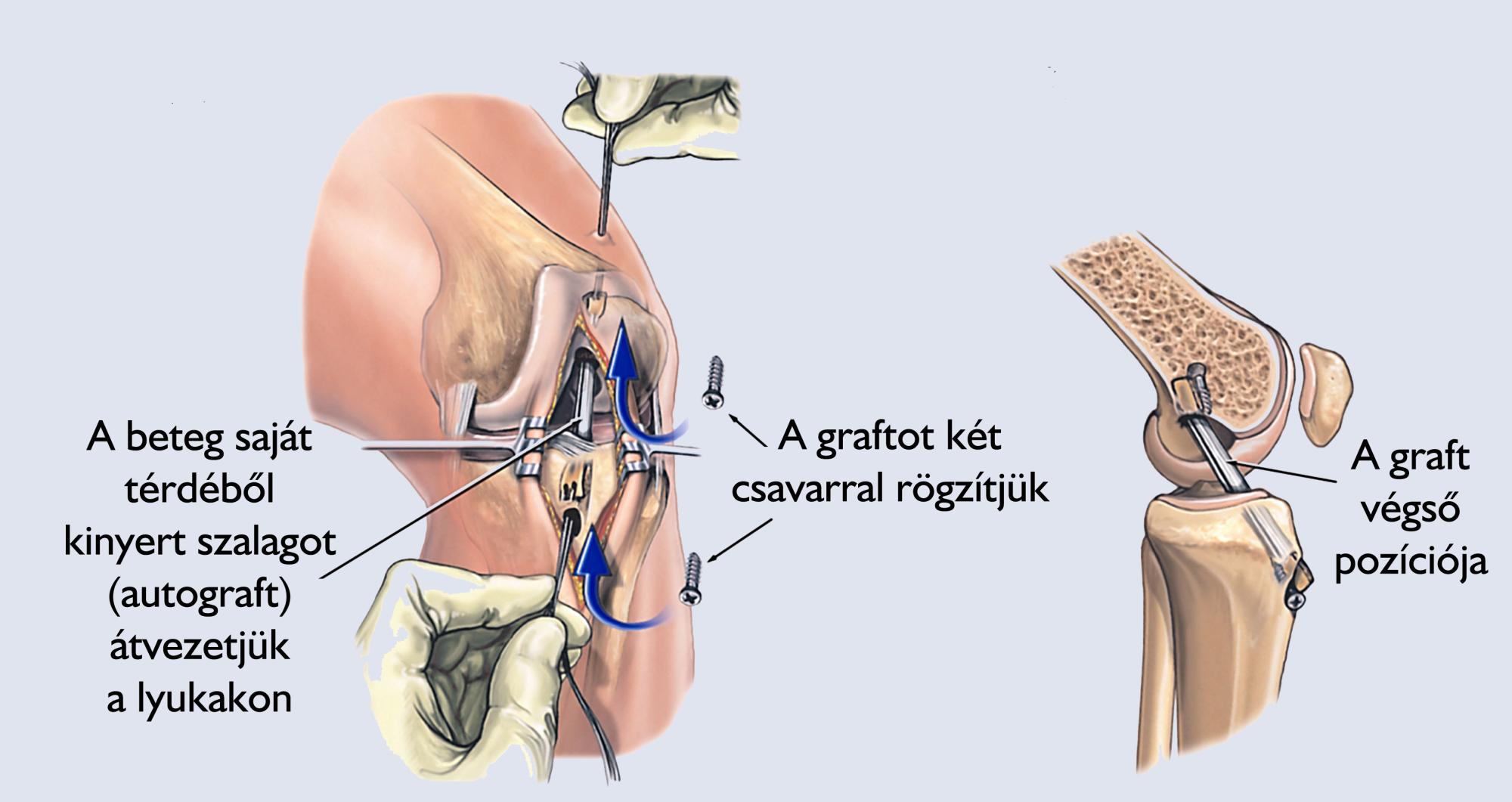 csípő artroszkópos kezelése)