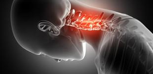 csípő-csontritkulás gyógyszerek)