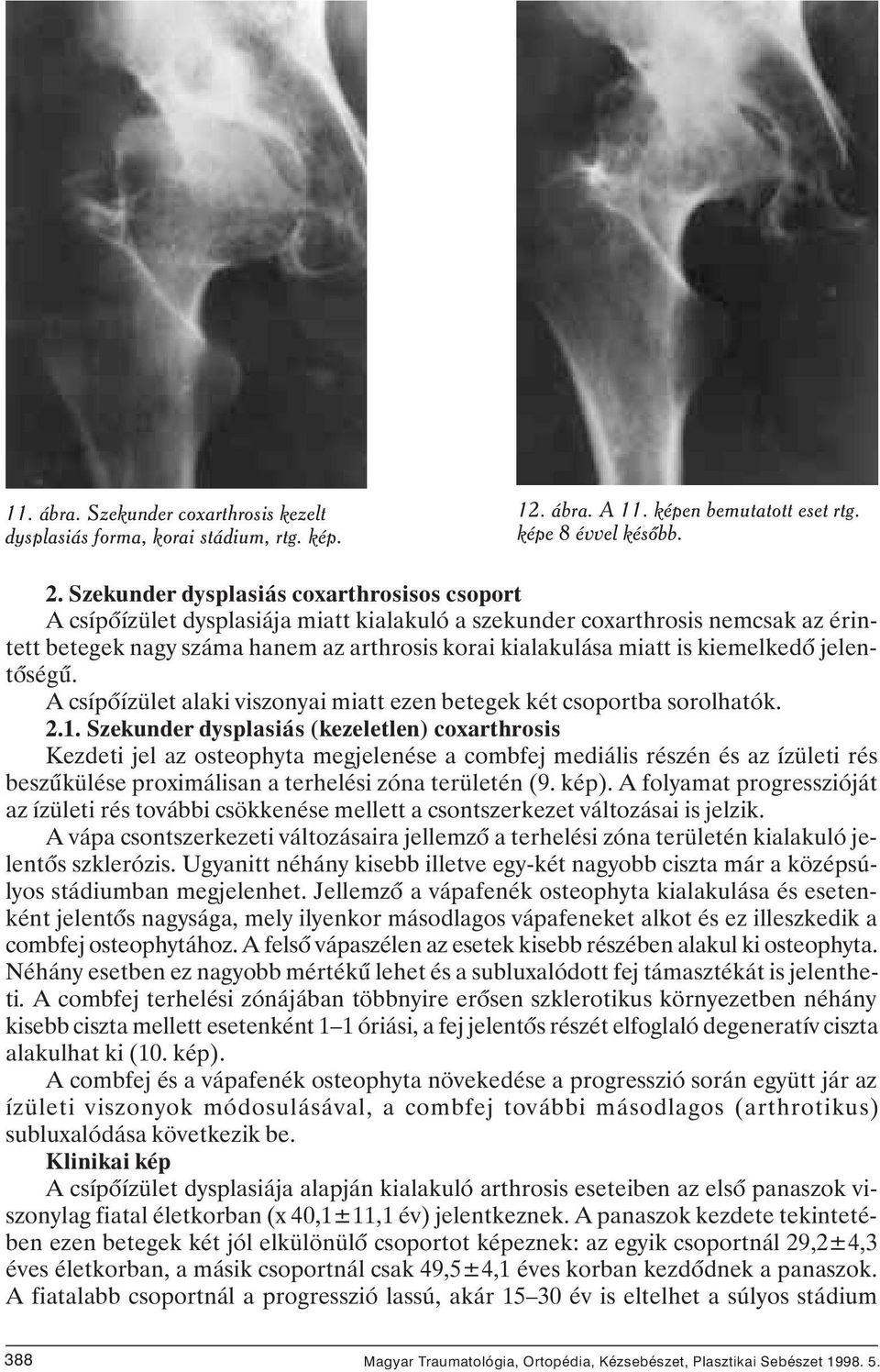 csípő fokú kezelés coxarthrosis)