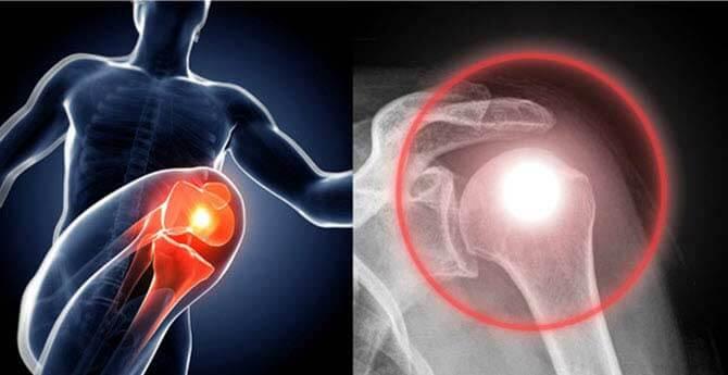 helyi fájdalom a csípőízületben az első carpalízület ízületi gyulladása