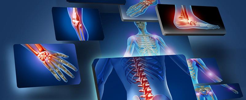 ízületi fájdalomkefe gyakorlatok hogyan kell kezelni a nem meghatározott artritisz