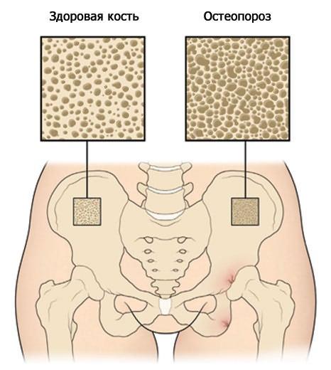 csípőbetegség ankylosis a váll- és könyökízületek fájdalmának oka