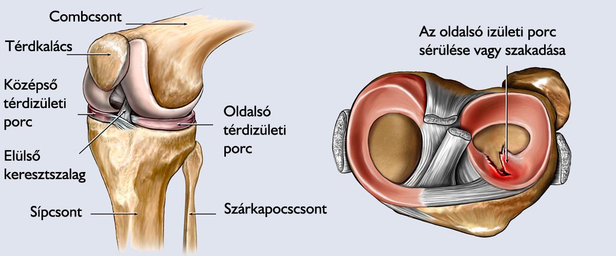 csípőízület súlyos fájdalma kicserélése után)