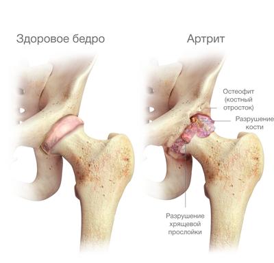 csípőízület ízületi felületeinek osteochondrosisa