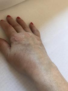 csípőízületi bursitis betegség tünetei