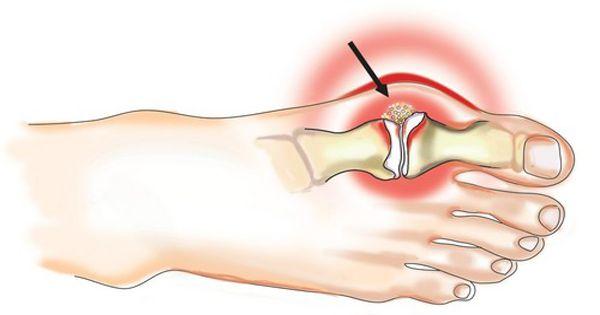 a bal csuklóízület deformáló artrózisa
