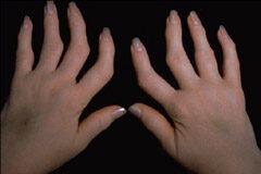 ahol jobb az artritisz kezelése)