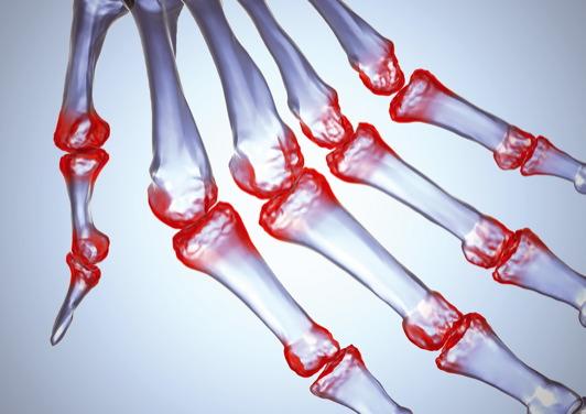 a csípőízület periartikuláris szöveteinek gyulladása)