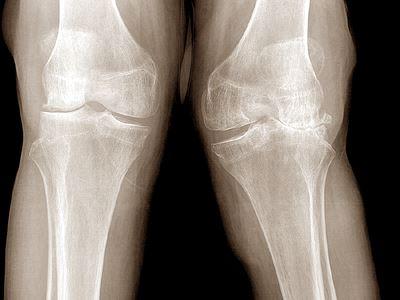 don artrózis kezelésére