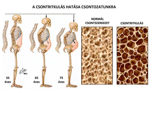 hatékony kenőcsök az ágyéki csontritkulás kezelésére)