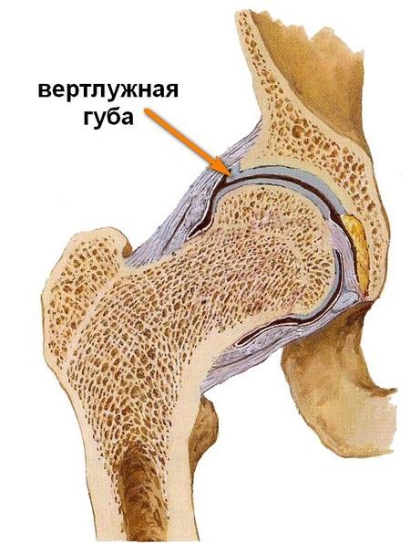 a boka láb artrózisa