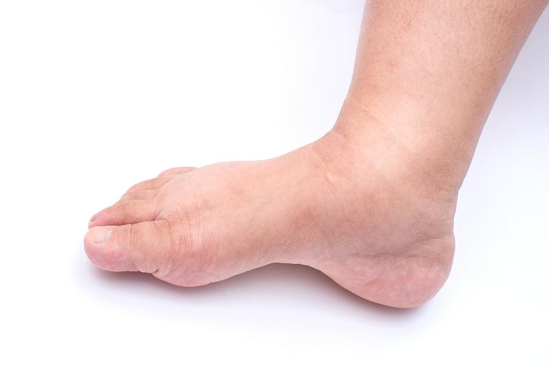 dagadt láb és kéz