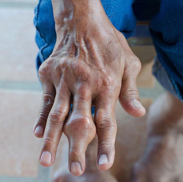 fájdalom és az ujjízület megnagyobbodása)