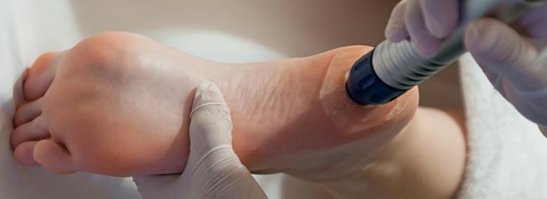 hogyan kezeljük a sarok artrózisát