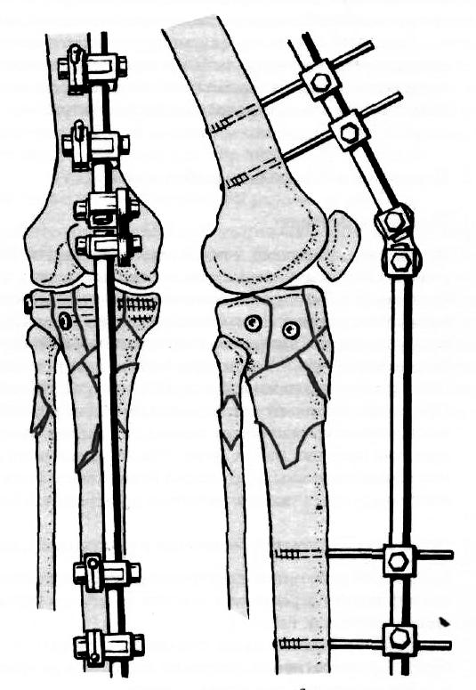 1-es artrosis szakasz, mint a kezelés
