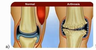 Arthrosis okai és kezelése 1 fok - a betegség tág mérete - Arthritis July