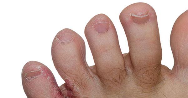 ödéma a lábujjak artritiszével)