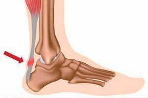 dimexid ízületi gyulladásos térdértékelések fájdalom a jobb vállízületben és az izmokban